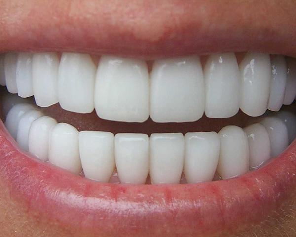 Faccette dentali Bari